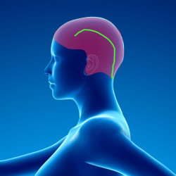 Douleurs chroniques post chirurgie cérébrale