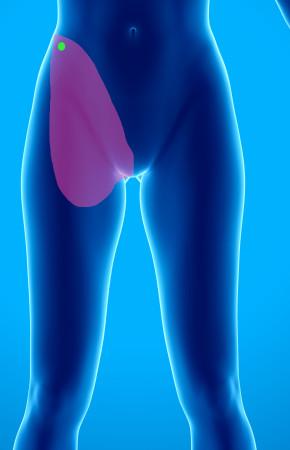 Douleurs chroniques post liposuccion abdominale