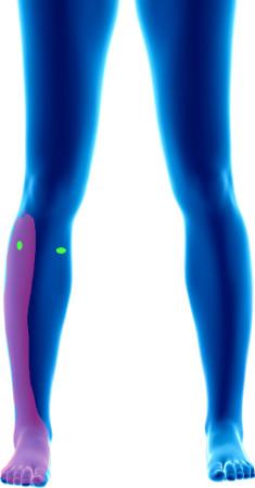 Complications d'un traitement de varices par méthode laser. Sciatique Chronique