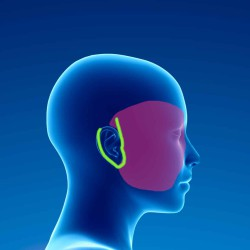 Douleurs chroniques post chirurgie plastique de la face (lifting) 1