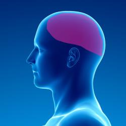Douleur chronique après chirurgie cérébrale ouverte (trépanation)