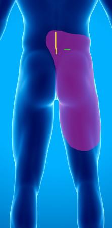 Douleur post arthrodèse lombaire
