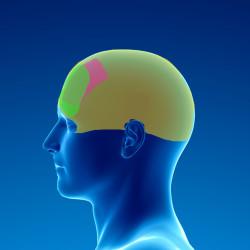 douleur chronique par syndrome myofascial du muscle occipito-frontal