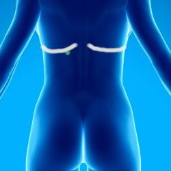 Syndromes myofasciaux des muscles abdominaux