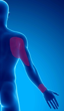 douleur chronique par syndrome myofascial du muscle subscapulaire