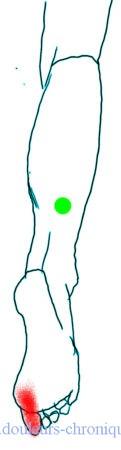 douleurs chroniques : Syndrome myofascial des muscles postérieurs de la jambe