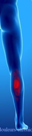 douleur chronique par syndrome myofascial des muscles postérieurs de la jambe