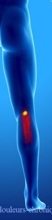 Syndrome myofascial des muscles postérieurs de la jambe