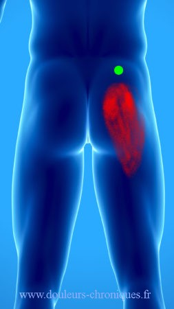Syndrome myofascial du muscle moyen fessier : muscle du lumbago