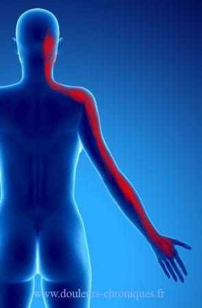 Douleurs chroniques post chirurgie cervicale