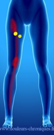 douleur chronique par syndrome myofascial des muscles adducteurs de la hanche