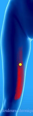 douleurs chroniques syndrome myofascial du vaste médial