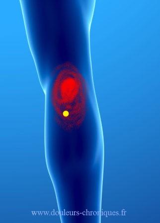 Douleurs chorniques et syndrome myofascial du muscle poplité