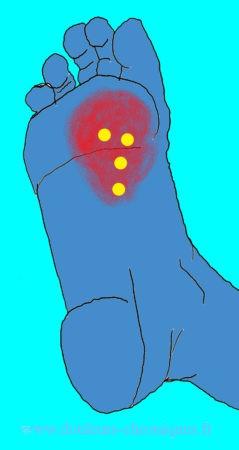 Douleurs chroniques par syndrome myofascial des muscles intrinsèques profonds du pied