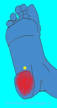 Douleurs chroniques par yndrome myofascial des muscles intrinsèques profonds du pied