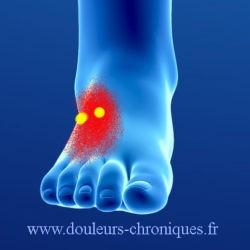 douleurs chroniques par syndrome myofascial du court extenseur des orteils