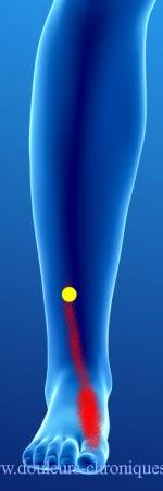 douleurs chronique par syndrome myofascial des muscles longs extenseurs des orteils