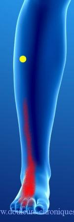 Douleurs chroniques par syndrome myofascial des muscles longs extenseurs des orteils
