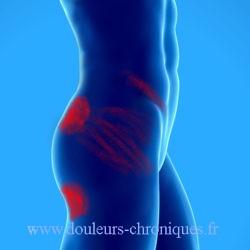 douleurs chroniques par syndrome myofascial du msucle carré des lombes