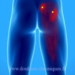 Douleurs chroniques par syndrome myofascial du muscle piriforme