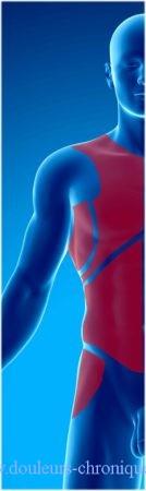 douleur du tronc d'origine musculaire