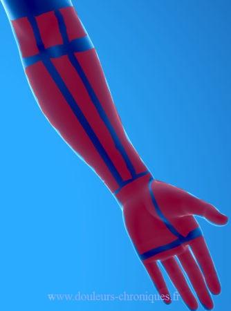 douleur d'origine musculaire du coude au doigt de face