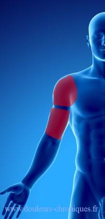 douleur d'origine musculaire du dos, de l'épaule et du bras de face