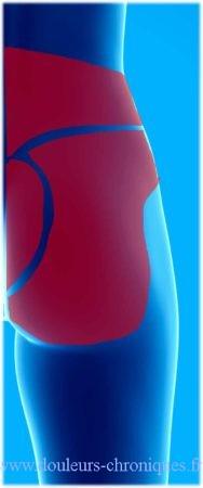 douleur musculaire de la partie inférieure du tronc de dos