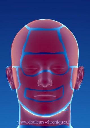douleur de la tête et du cou