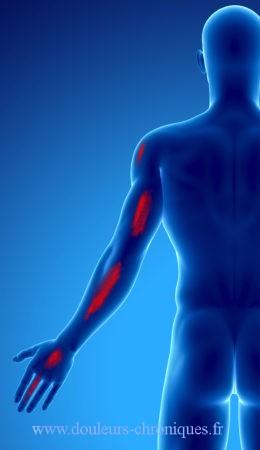 douleur chronique par syndrome myofascial du muscle coraro-brachial vue postérieure