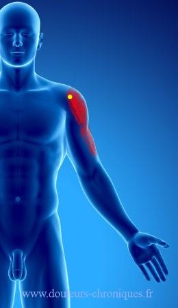 douleur chronique par syndrome myofascial du deltoïde partie antérieure