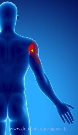 douleur chronique par syndrome myofascial du deltoïde partie postérieure