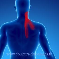 douleurs chroniques par syndrome myofascial du muscle élévateur de la scapula. Torticolis