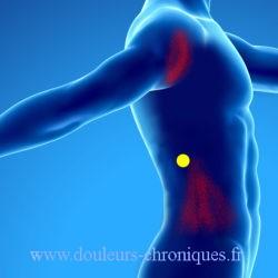 douleur chronique par syndrome myofascial du muscle grand dorsal