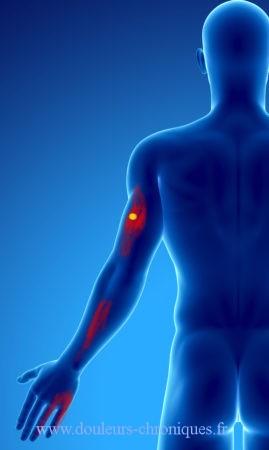 Douleur chronique par syndrome myofascial du muscle triceps brachial