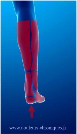 Douleur chronique de la jambe, de la cheville et du pied d'origine musculaire