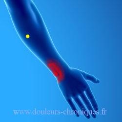 Syndrome myofascial de l'extenseur ulnaire du carpe