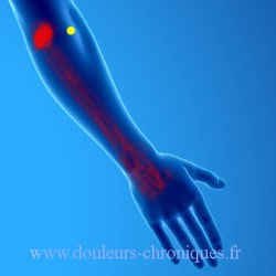 Syndrome myofascial du long extenseur radial du carpe
