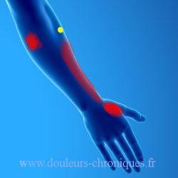 Syndrome myofascial du muscle brachio-radial
