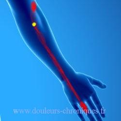 Syndrome myofascial des muscles extenseurs des doigts