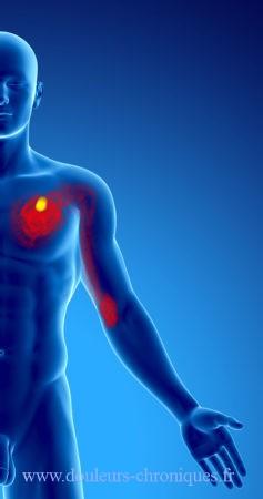Douleur chronique par syndrome myofascial du muscle pectoral