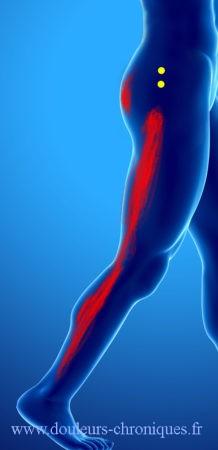 douleur chronique par syndrome myofascial du muscle petit fessier