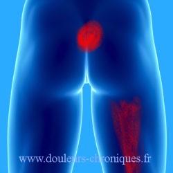 douleur chronique par syndrome myofascial du muscle obturateur interne