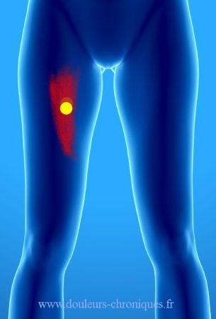 douleur chronique par syndrome myofascial du muscle sartorius