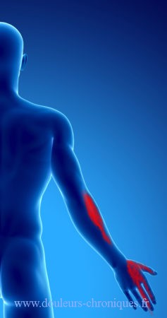 Syndrome myofascial du muscle pectoral - Commercial Real Estate