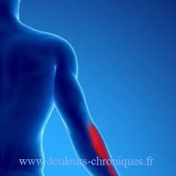 Douleur chronique par syndrome myofascial du muscle sous-clavier