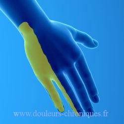 territoire sensitif nerf ulnaire face dorsale