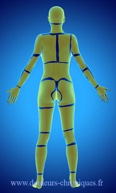 Guide des douleurs d'origine cicatricielle de dos