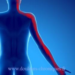 Douleur chronique post chirurgie du rachis cervical par abord antérieur