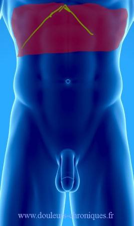 Chirurgie abdominale ouverte (Estomac, intestin grêle, colon, vésicule biliaire, pancréas, foie, rate, ….)